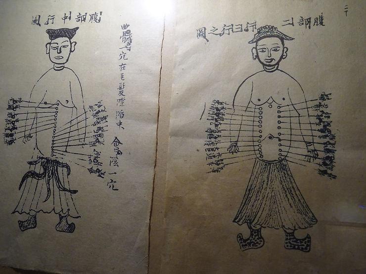 L'acupuncture, une tradition vietnamienne